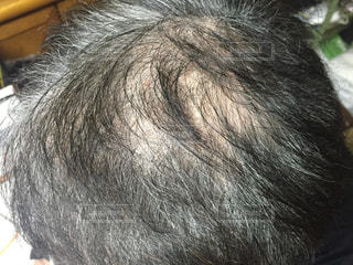 頭髪の写真・画像素材[2032481]