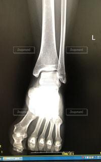 足のレントゲン写真の写真・画像素材[1809050]
