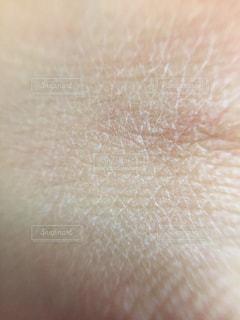 乾燥肌 アップの写真・画像素材[1812741]