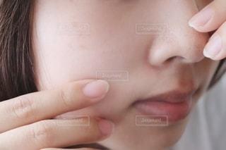 いちご鼻の写真・画像素材[2276487]