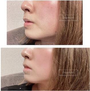 ビフォーアフターの肌の写真・画像素材[4168353]