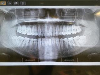 歯のレントゲン写真の写真・画像素材[1839533]