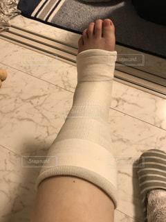 骨折の写真・画像素材[3036577]