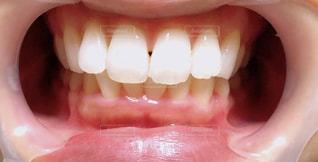 歯の写真・画像素材[1900399]