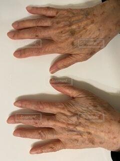 手のシミの写真・画像素材[4116930]