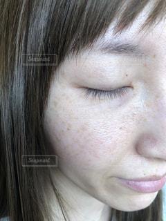 肌トラブルの写真・画像素材[1978366]