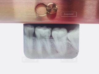 臼歯のレントゲンの写真・画像素材[1969386]