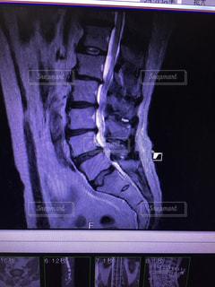 人のスクリーン ショット腰椎変性すべり症 MRI   画像 腰痛の写真・画像素材[1909064]