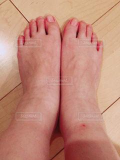 むくんでる足の写真・画像素材[2215828]