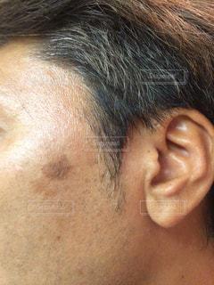 シミ治療前の写真・画像素材[2758131]