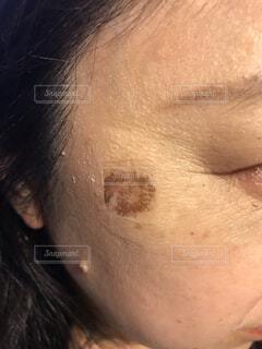 シミ治療の写真・画像素材[4442534]