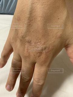 アレルギーによる皮膚の炎症の写真・画像素材[2320261]