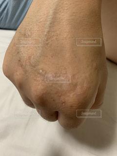 アレルギーによる皮膚の炎症の写真・画像素材[2320264]