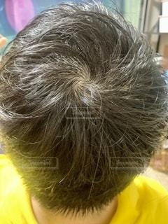 頭皮が薄い男性の頭の写真・画像素材[3270407]