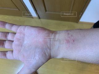 蕁麻疹で痒い肌(腕時計あと)の写真・画像素材[3388839]