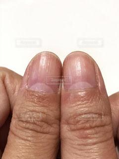 ボコボコの爪の写真・画像素材[2416126]