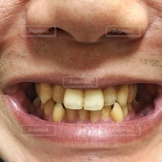 歯並びの写真・画像素材[3443185]