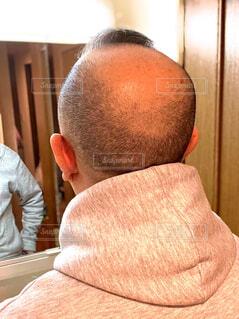 薄毛の男性の写真・画像素材[3923266]