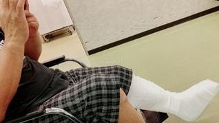 車椅子 骨折の写真・画像素材[2639899]