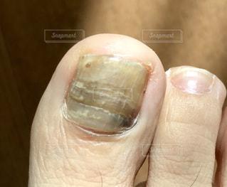足の爪の上から見た図の写真・画像素材[2555678]