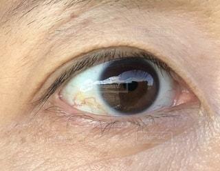 目の写真・画像素材[2616098]