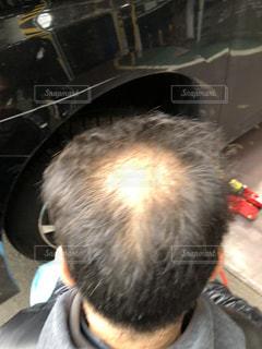 花火型ハゲの写真・画像素材[2152384]