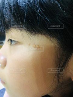 生まれつきのあざの写真・画像素材[2365077]