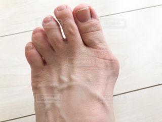 外反母趾の写真・画像素材[2163028]