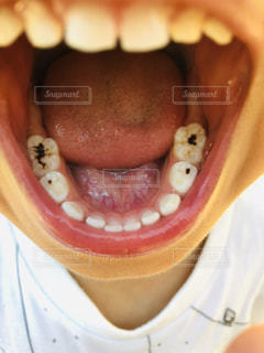 虫歯!?の写真・画像素材[2201736]