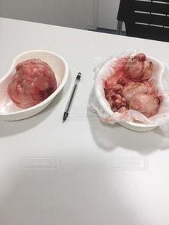 子宮筋腫の摘出の写真・画像素材[2237248]