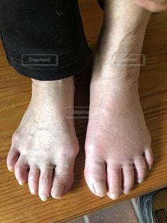 足が痛いの写真・画像素材[2197138]