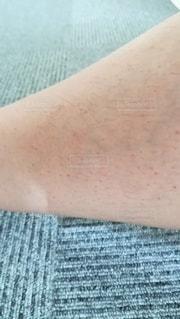 自己脱毛を続けた結果、汚い足になってしまった女性のすねの写真・画像素材[2378806]