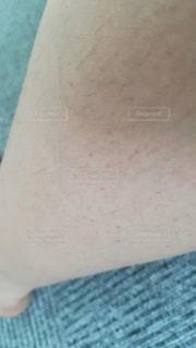 自己脱毛の結果、ブツブツ毛穴、埋没毛だらけになった女性の足の写真・画像素材[2378804]