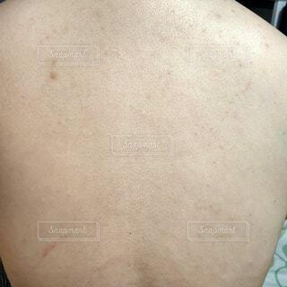 女性の背中、毛穴汚れや黒ずみ、シミが目立つ画像の写真・画像素材[4581376]