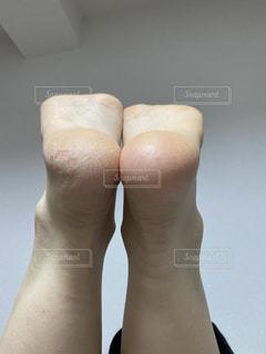 足裏角質の写真・画像素材[2887020]