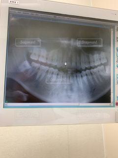 歯並びの写真・画像素材[2237157]
