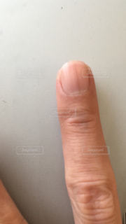 爪にホクロの写真・画像素材[2237374]