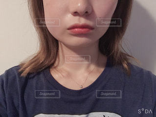 親知らず抜歯後。の写真・画像素材[2505182]