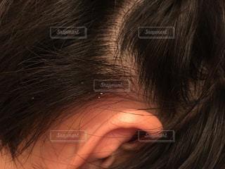 炎症を起こした頭皮の写真・画像素材[2753469]