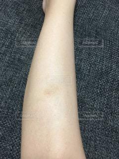 足の痣の写真・画像素材[2350003]