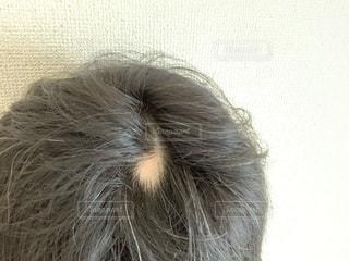 円形脱毛症の写真・画像素材[2379737]