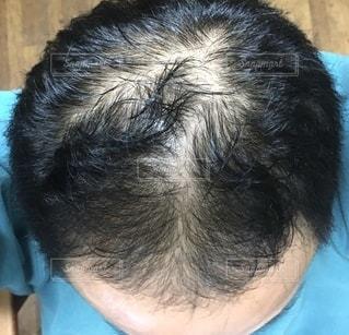 薄毛の写真・画像素材[2719276]