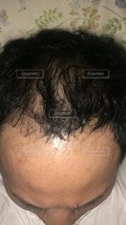 薄毛の写真・画像素材[3655255]