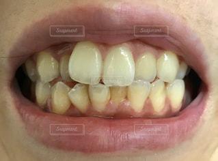 黄ばみのある悪い歯並びの写真・画像素材[2411779]