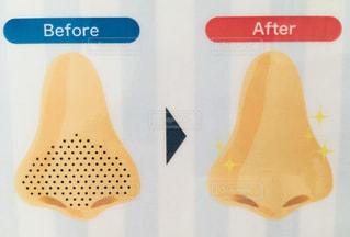 小鼻黒ずみ除去の写真・画像素材[2483439]