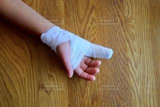 小指の怪我で包帯とギプスで固定の写真・画像素材[2551457]