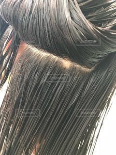 円形脱毛症の写真・画像素材[2916931]