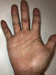初めての手足口病の写真・画像素材[2637408]