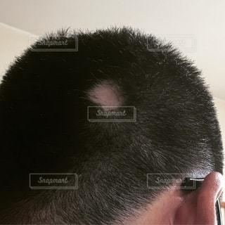 円形脱毛症の写真・画像素材[2553608]