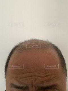 薄毛の写真・画像素材[2615308]